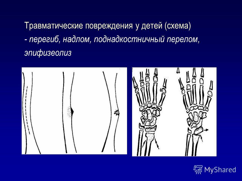 Травматические повреждения у детей (схема) - перегиб, надлом, поднадкостничный перелом, эпифизеолиз