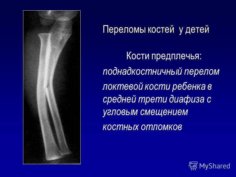 Переломы костей у детей Кости предплечья: поднадкостничный перелом локтевой кости ребенка в средней трети диафиза с угловым смещением костных отломков