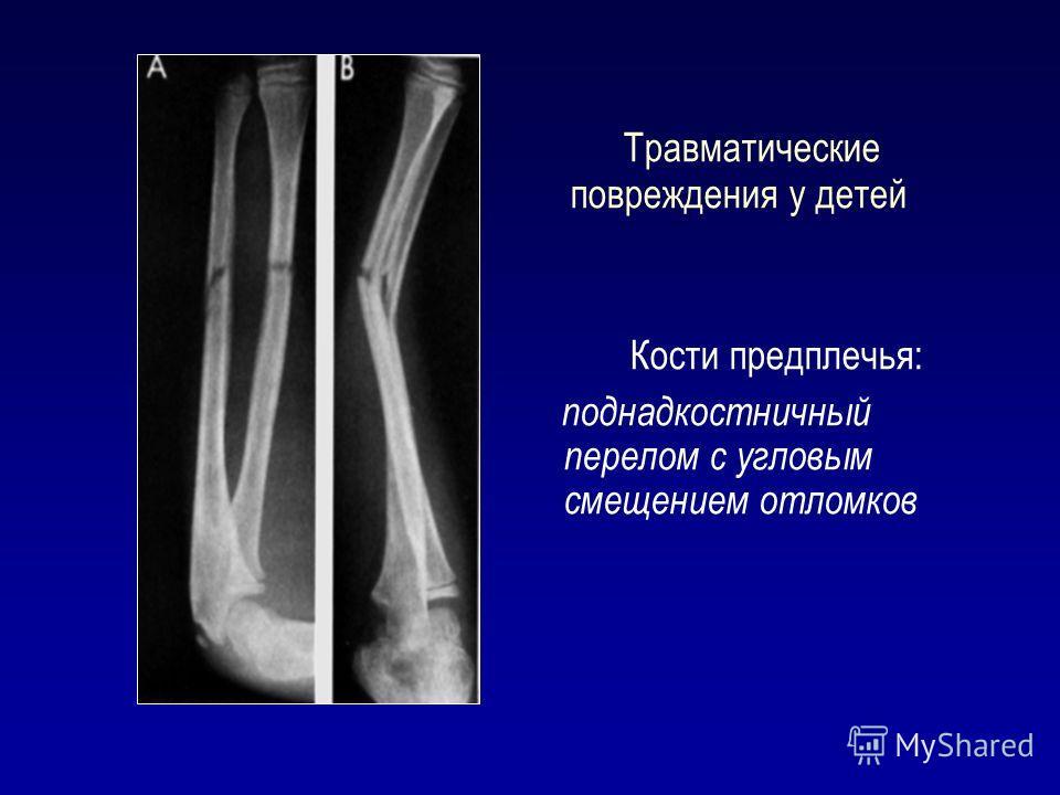Травматические повреждения у детей Кости предплечья: поднадкостничный перелом с угловым смещением отломков
