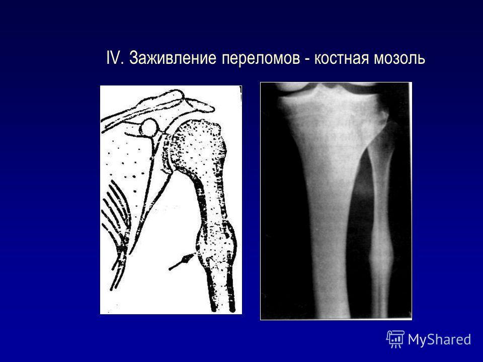 IV. Заживление переломов - костная мозоль
