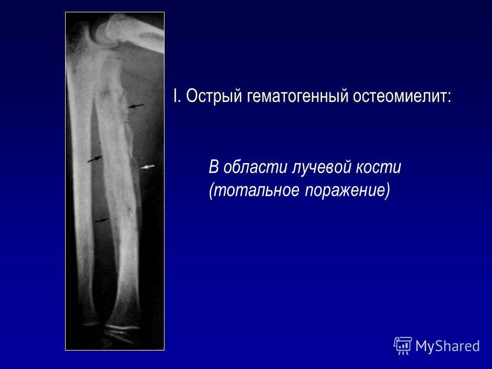 I. Острый гематогенный остеомиелит: В области лучевой кости (тотальное поражение)