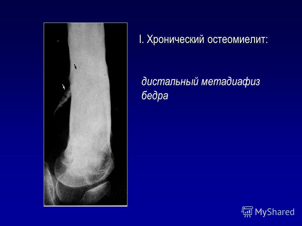 I. Хронический остеомиелит: дистальный метадиафиз бедра