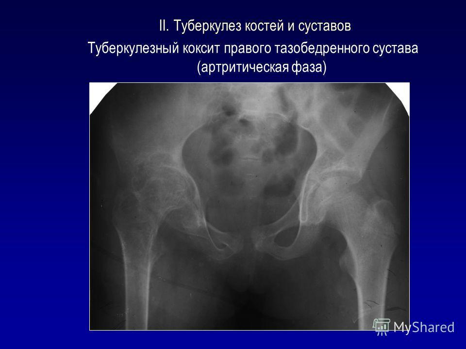 II. Туберкулез костей и суставов Туберкулезный коксит правого тазобедренного сустава (артритическая фаза)