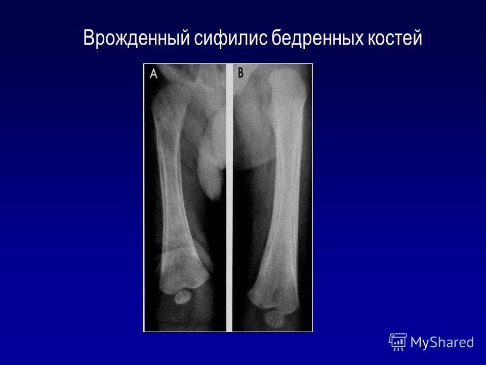 Врожденный сифилис бедренных костей