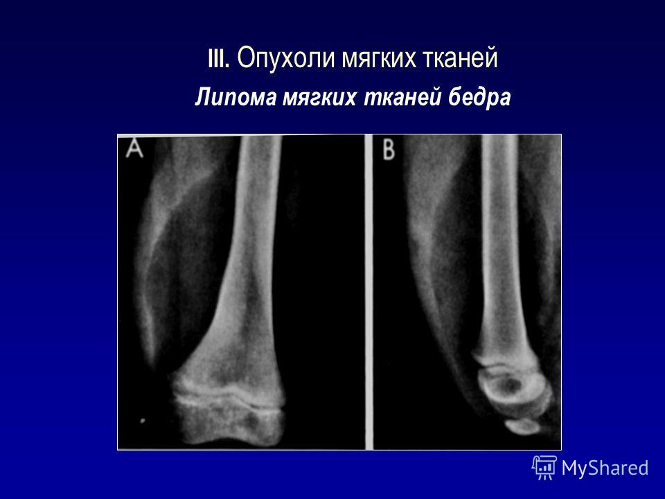 III. Опухоли мягких тканей Липома мягких тканей бедра