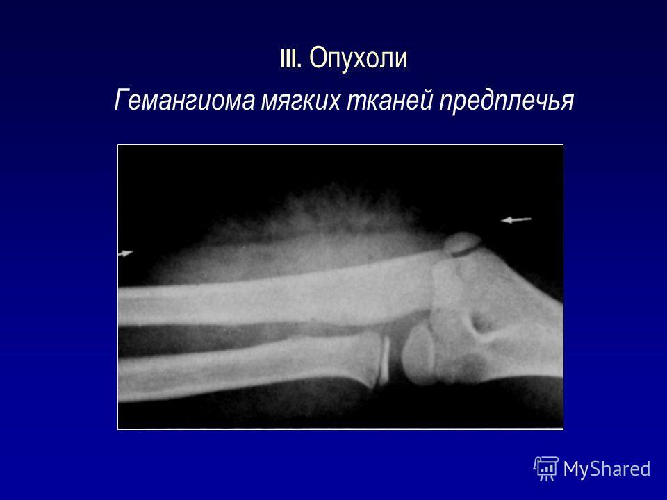 III. Опухоли Гемангиома мягких тканей предплечья