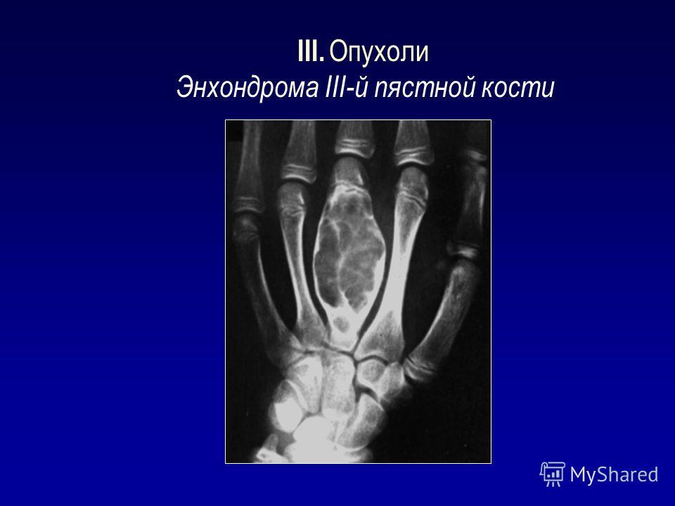 III. Опухоли Энхондрома III-й пястной кости