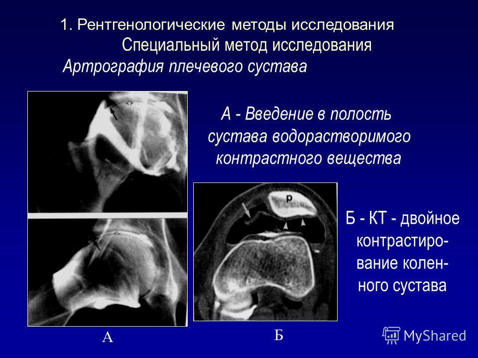 Специальный метод исследования Артрография плечевого сустава А - Введение в полость сустава водорастворимого контрастного вещества Б - КТ - двойное контрастиро- вание колен- ного сустава А Б 1. Рентгенологические методы исследования