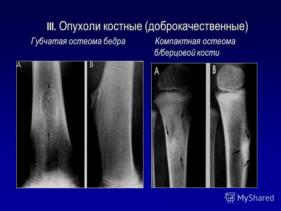 III. Опухоли костные (доброкачественные) Губчатая остеома бедра Компактная остеома б/берцовой кости