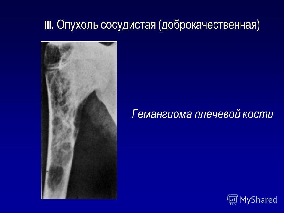 III. Опухоль сосудистая (доброкачественная) Гемангиома плечевой кости
