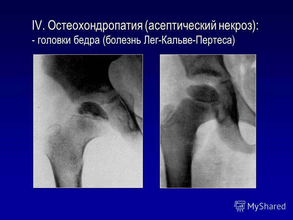 IV. Остеохондропатия (асептический некроз): - головки бедра (болезнь Лег-Кальве-Пертеса)