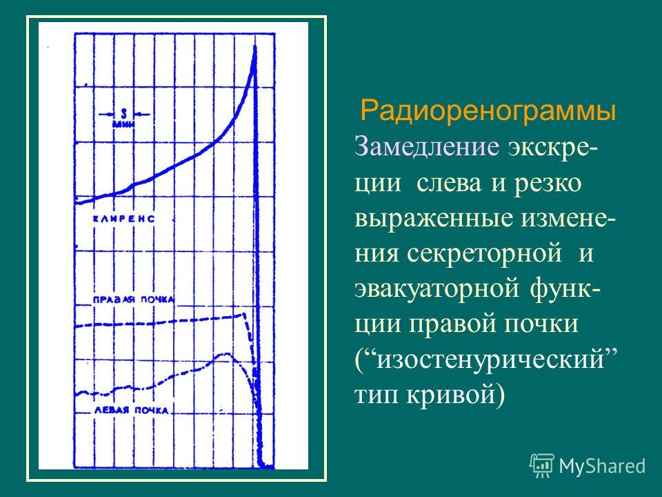 Радиоренограммы Замедление экскре- ции слева и резко выраженные измене- ния секреторной и эвакуаторной функ- ции правой почки (изостенурический тип кривой)