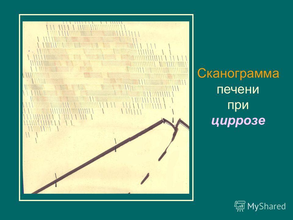 Сканограммa печени при циррозe