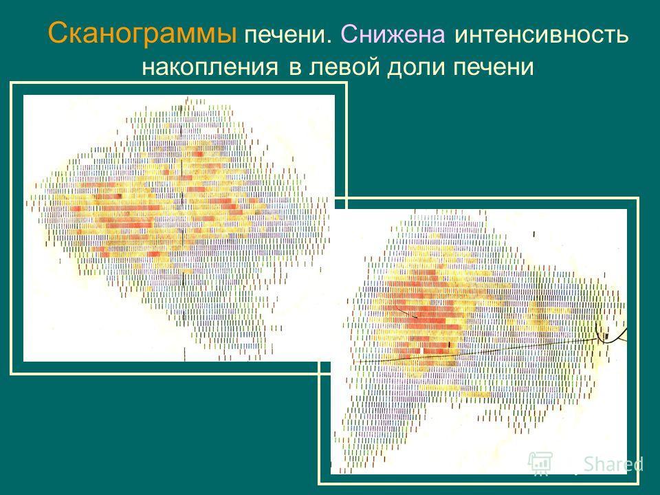 Сканограммы печени. Снижена интенсивность накопления в левой доли печени