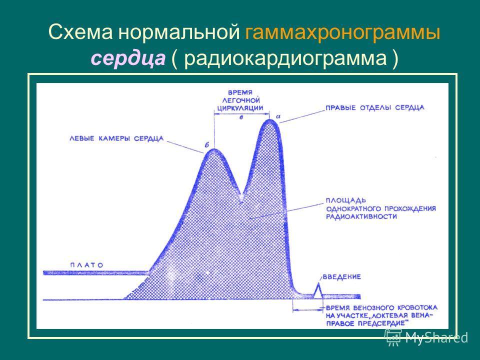 Схема нормальной гаммахронограммы сердца ( радиокардиограмма )