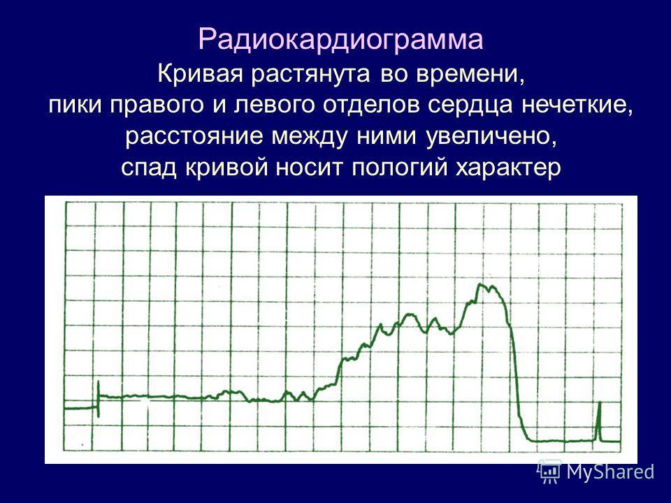 Радиокардиограмма Кривая растянута во времени, пики правого и левого отделов сердца нечеткие, расстояние между ними увеличено, спад кривой носит пологий характер