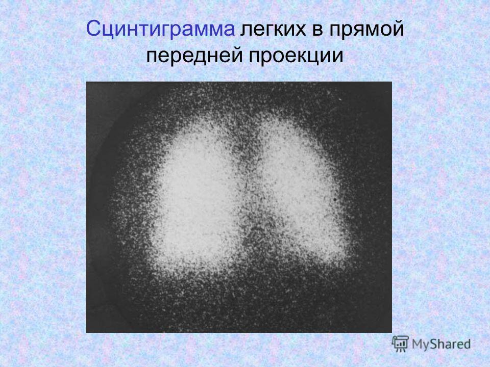 Сцинтиграмма легких в прямой передней проекции