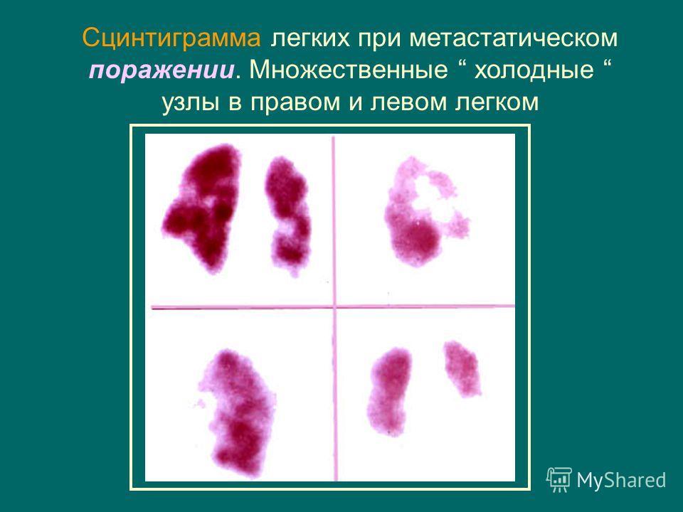 Сцинтиграмма легких при метастатическом поражении. Множественные холодные узлы в правом и левом легком
