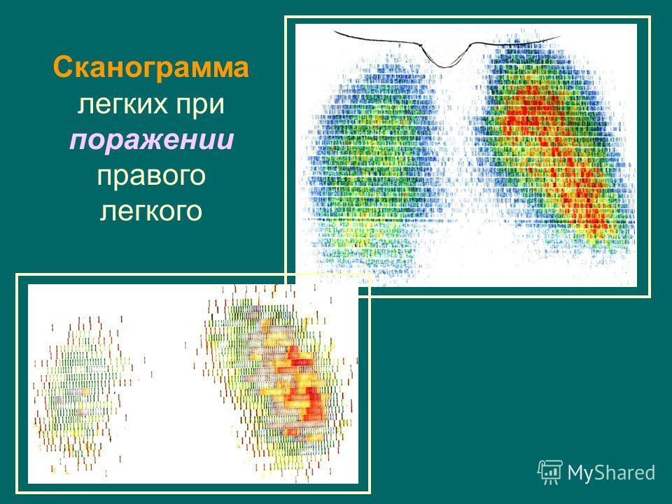 Сканограмма легких при поражении правого легкого