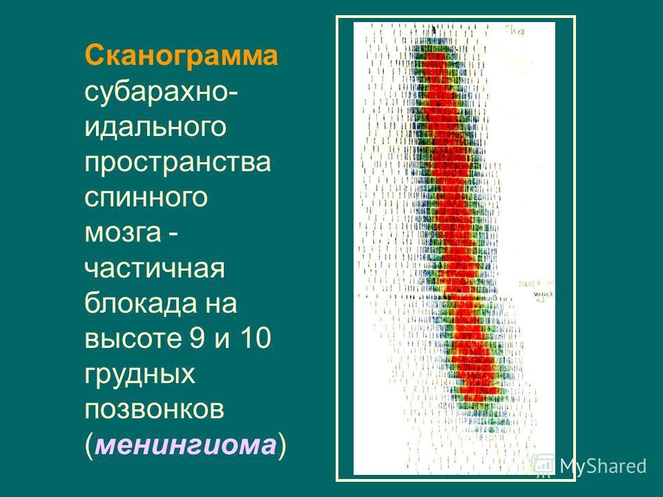 Сканограмма субарахно- идального пространства спинного мозга - частичная блокада на высоте 9 и 10 грудных позвонков (менингиома)