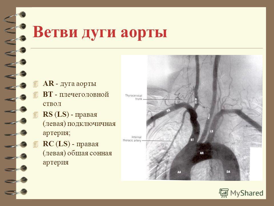 Ветви дуги аорты 4 AR - дуга аорты 4 BT - плечеголовной ствол 4 RS (LS) - правая (левая) подключичная артерия; 4 RC (LS) - правая (левая) общая сонная артерия