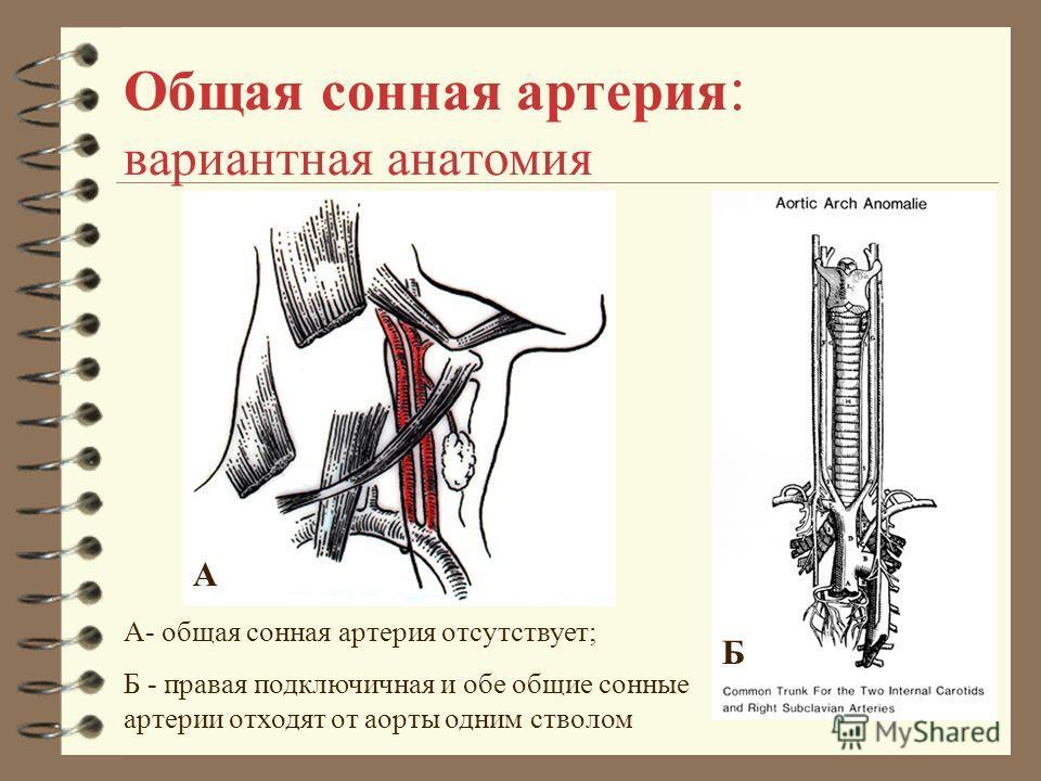 Общая сонная артерия : вариантная анатомия А Б А- общая сонная артерия отсутствует; Б - правая подключичная и обе общие сонные артерии отходят от аорты одним стволом