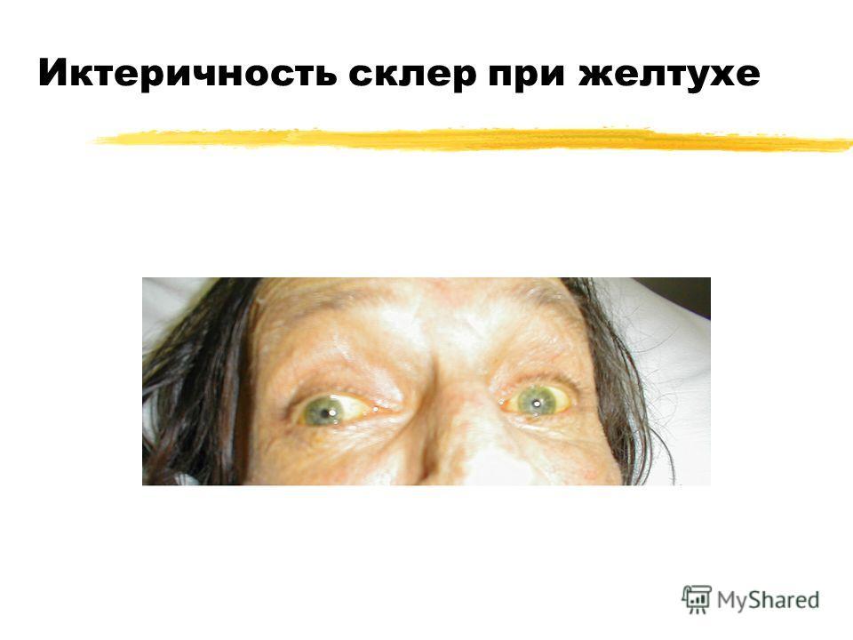 Иктеричность склер при желтухе