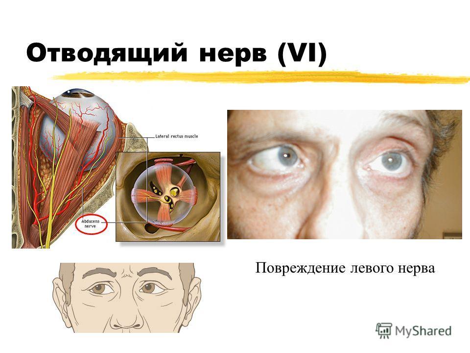Отводящий нерв (VI) Повреждение левого нерва