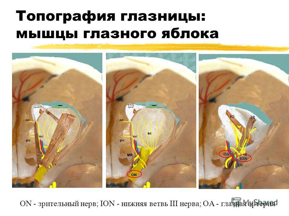 Топография глазницы: мышцы глазного яблока ON - зрительный нерв; ION - нижняя ветвь III нерва; OA - глазная артерия