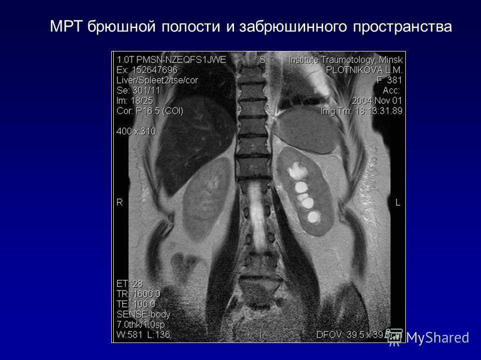 Компьютерная томография брюшной полости в новосибирске цена