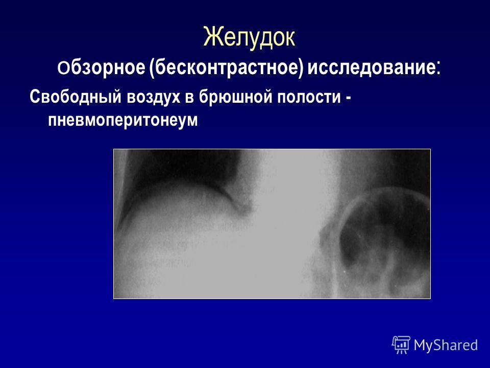 26 Желудок о бзорное (бесконтрастное) исследование : Свободный воздух в брюшной полости - пневмоперитонеум
