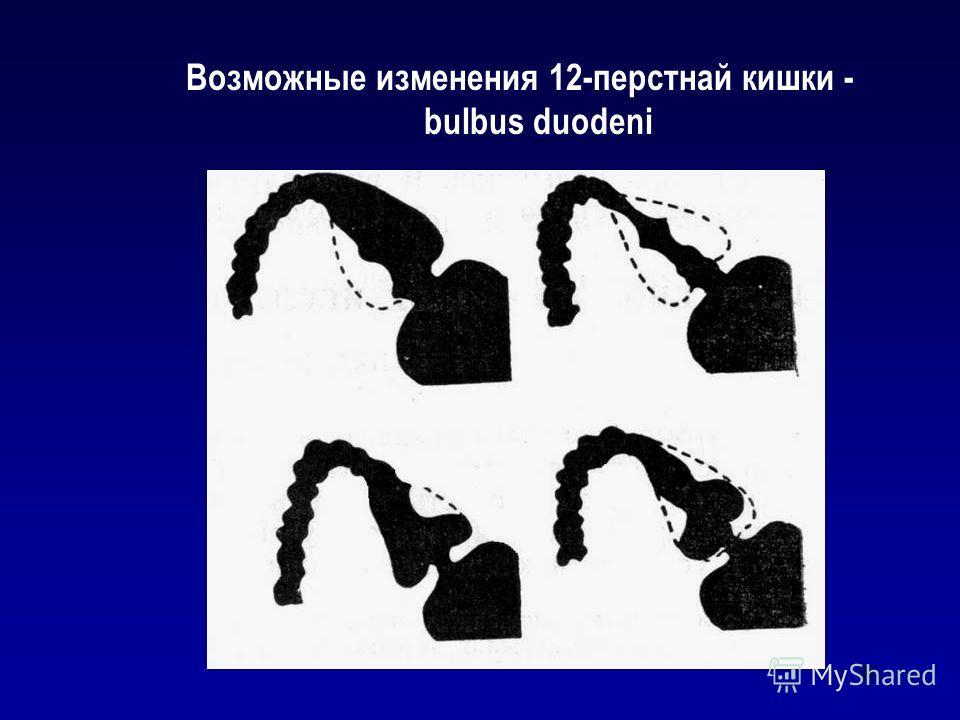 46 Возможные изменения 12-перстнай кишки - bulbus duodeni