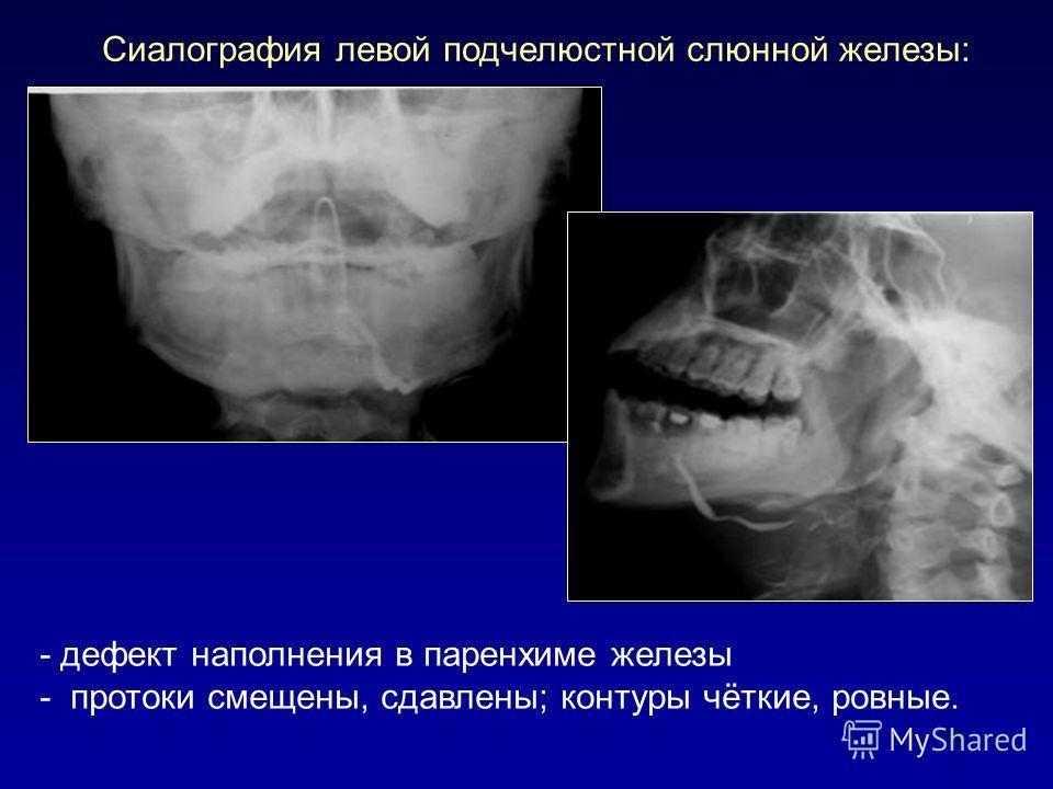 79 Сиалография левой подчелюстной слюнной железы: - дефект наполнения в паренхиме железы - протоки смещены, сдавлены; контуры чёткие, ровные.