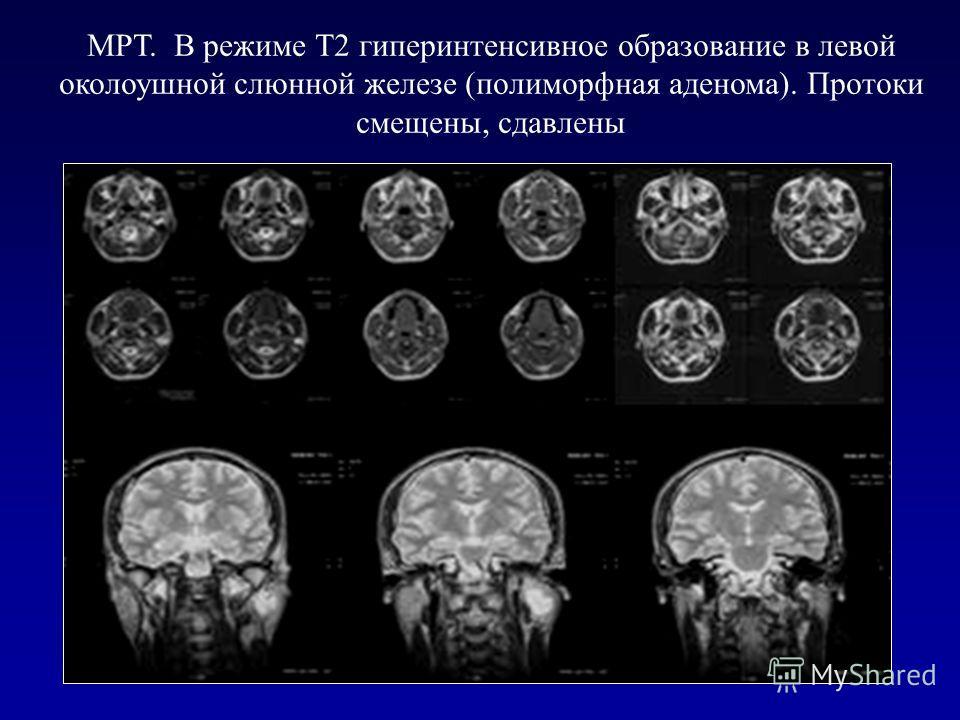 81 МРТ. В режиме Т2 гиперинтенсивное образование в левой околоушной слюнной железе (полиморфная аденома). Протоки смещены, сдавлены