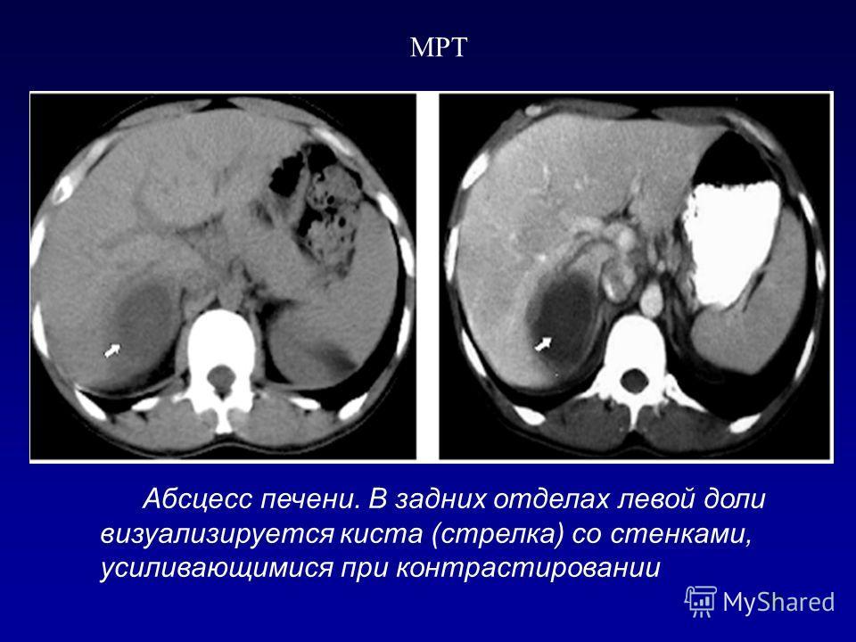 90 Абсцесс печени. В задних отделах левой доли визуализируется киста (стрелка) со стенками, усиливающимися при контрастировании МРТ