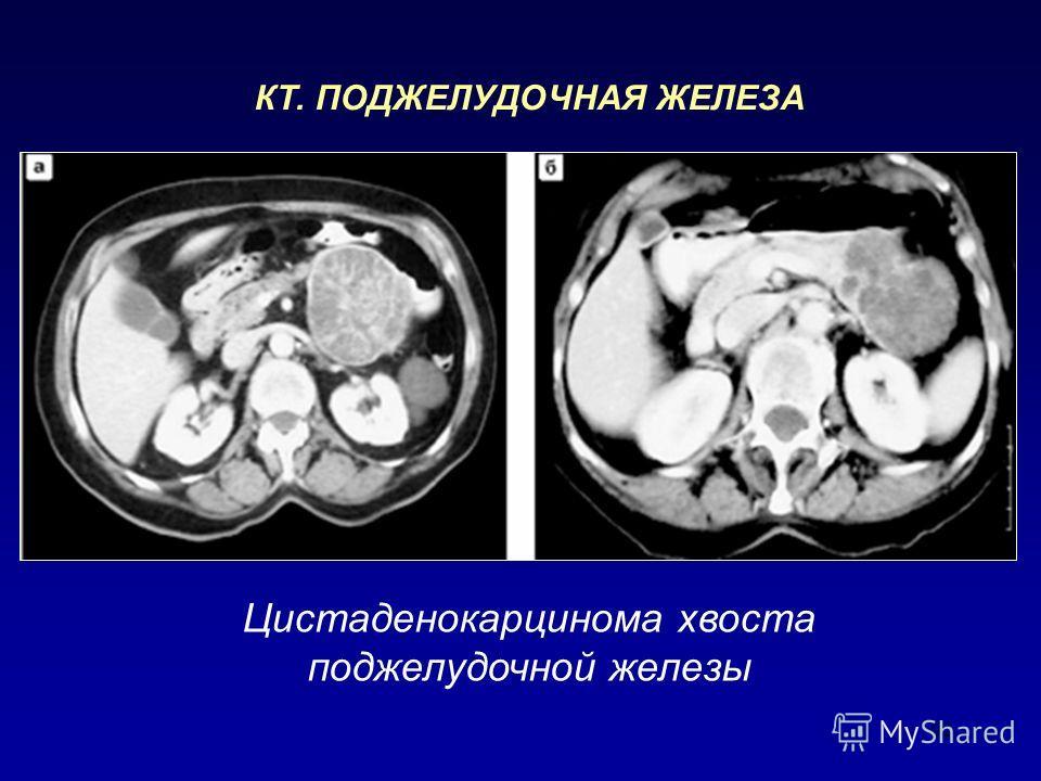 92 Цистаденокарцинома хвоста поджелудочной железы КТ. ПОДЖЕЛУДОЧНАЯ ЖЕЛЕЗА