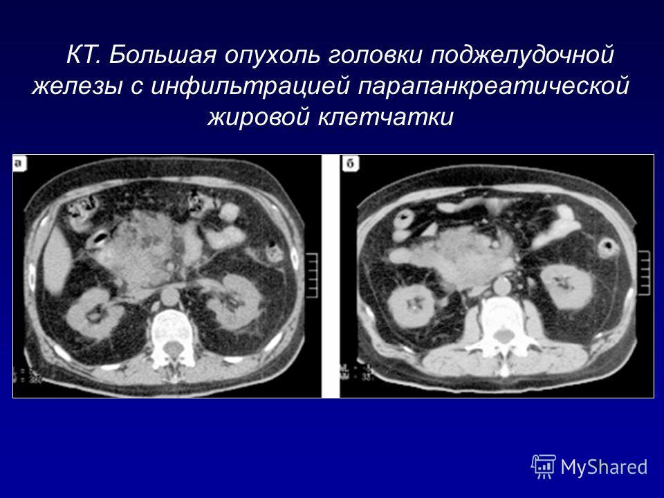 93 КТ. Большая опухоль головки поджелудочной железы с инфильтрацией парапанкреатической жировой клетчатки