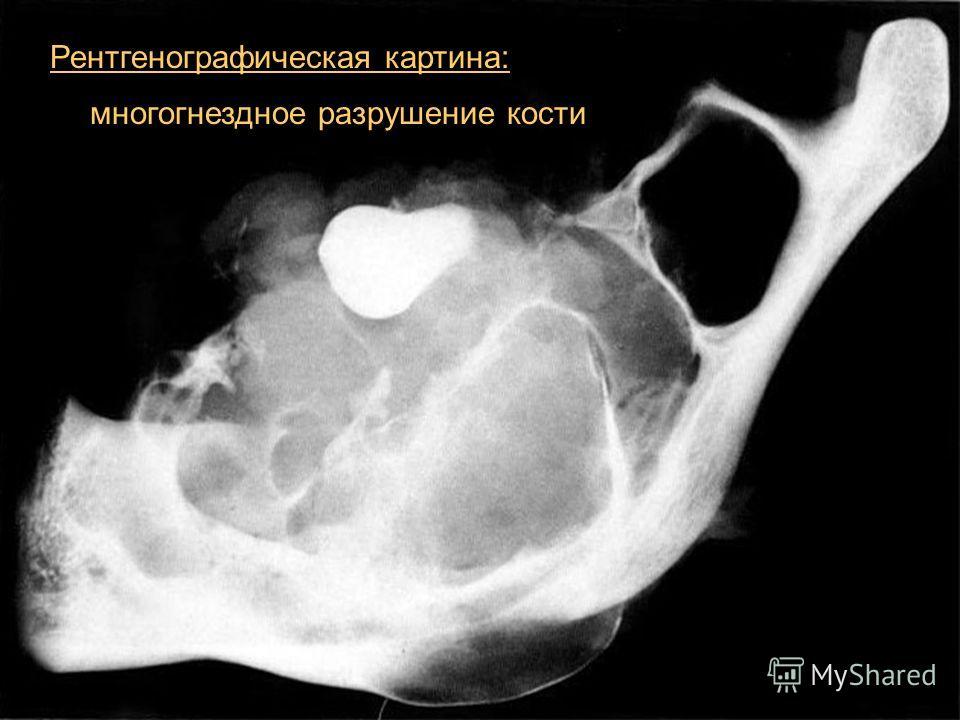 15 Рентгенографическая картина: многогнездное разрушение кости