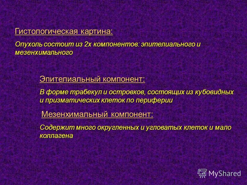 42 Гистологическая картина: Опухоль состоит из 2х компонентов: эпителиального и мезенхимального Эпителиальный компонент: В форме трабекул и островков, состоящих из кубовидных и призматических клеток по периферии Мезенхимальный компонент: Мезенхимальн
