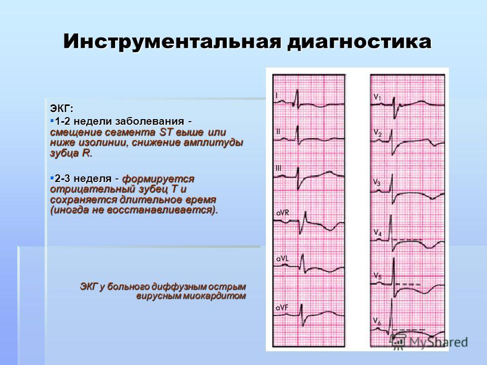 Инструментальная диагностика ЭКГ: 1-2 недели заболевания - смещение сегмента SТ выше или ниже изолинии, снижение амплитуды зубца R. 1-2 недели заболевания - смещение сегмента SТ выше или ниже изолинии, снижение амплитуды зубца R. 2-3 неделя - формиру