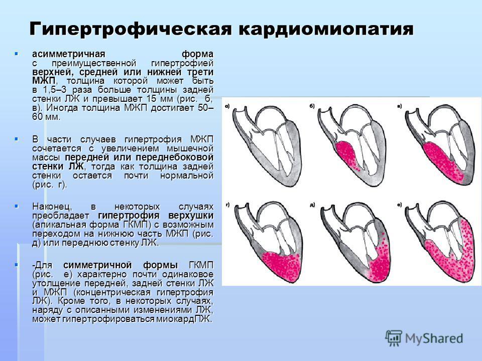 Гипертрофическая кардиомиопатия асимметричная форма с преимущественной гипертрофией верхней, средней или нижней трети МЖП, толщина которой может быть в 1,5–3 раза больше толщины задней стенки ЛЖ и превышает 15 мм (рис. б, в). Иногда толщина МЖП дости