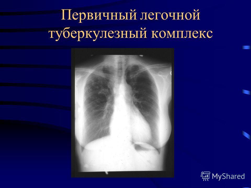 Первичный легочной туберкулезный комплекс