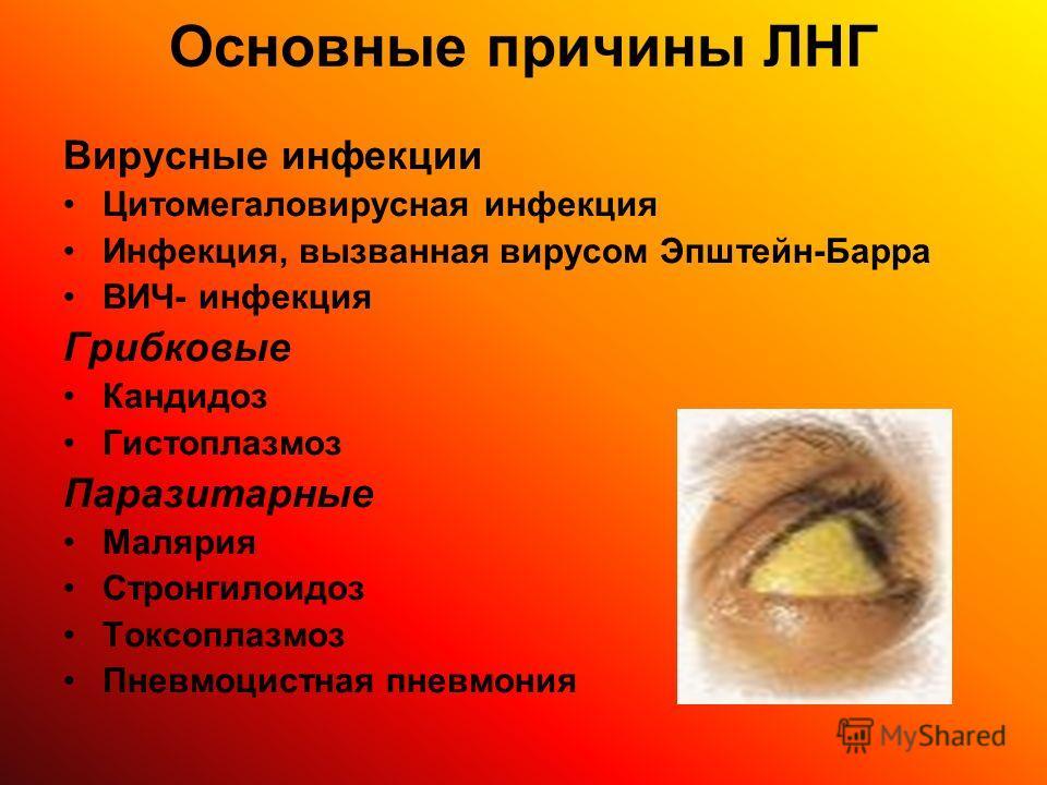 Основные причины ЛНГ Вирусные инфекции Цитомегаловирусная инфекция Инфекция, вызванная вирусом Эпштейн-Барра ВИЧ- инфекция Грибковые Кандидоз Гистоплазмоз Паразитарные Малярия Стронгилоидоз Токсоплазмоз Пневмоцистная пневмония