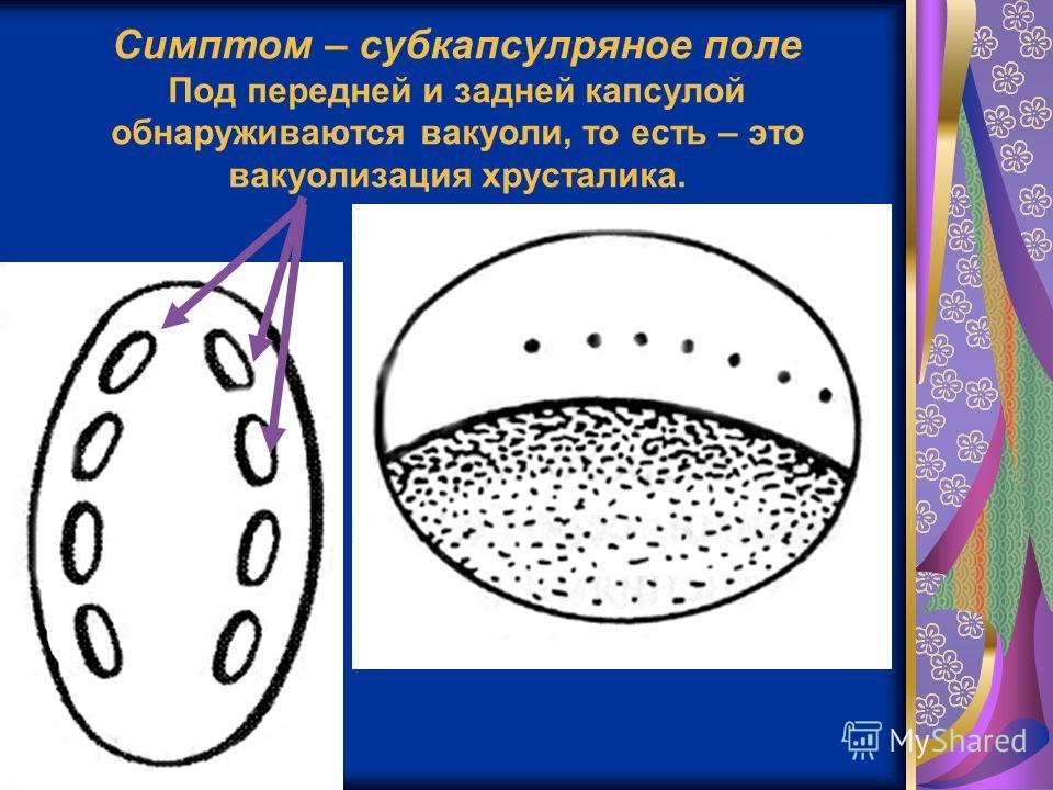 Симптом – субкапсулряное поле Под передней и задней капсулой обнаруживаются вакуоли, то есть – это вакуолизация хрусталика.