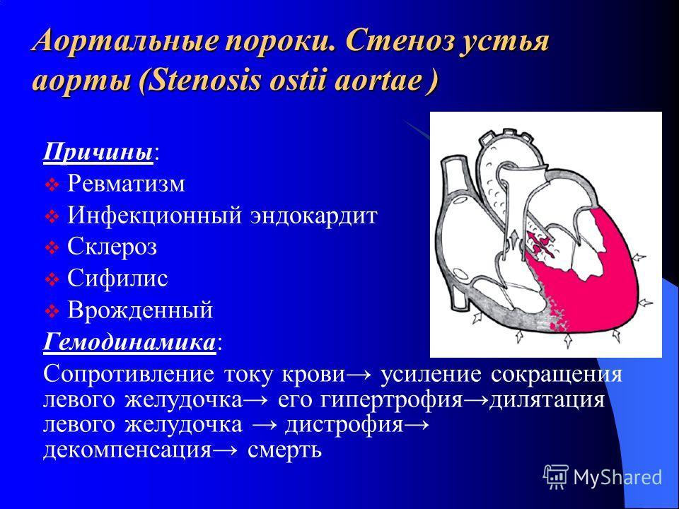 Аортальные пороки. Стеноз устья аорты (Stenosis ostii aortae ) Причины: Ревматизм Инфекционный эндокардит Склероз Сифилис Врожденный Гемодинамика: Сопротивление току крови усиление сокращения левого желудочка его гипертрофиядилятация левого желудочка
