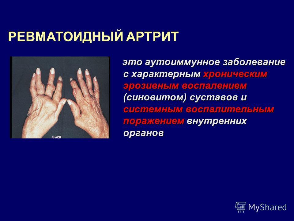 это аутоиммунное заболевание с характерным хроническим эрозивным воспалением (синовитом) суставов и системным воспалительным поражением внутренних органов это аутоиммунное заболевание с характерным хроническим эрозивным воспалением (синовитом) сустав
