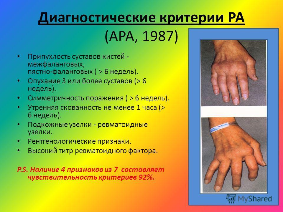 Диагностические критерии РА (АРА, 1987) Припухлость суставов кистей - межфаланговых, пястно-фаланговых ( > 6 недель). Опухание 3 или более суставов (> 6 недель). Симметричность поражения ( > 6 недель). Утренняя скованность не менее 1 часа (> 6 недель