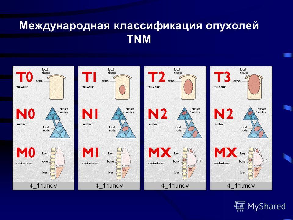 Международная классификация опухолей TNM