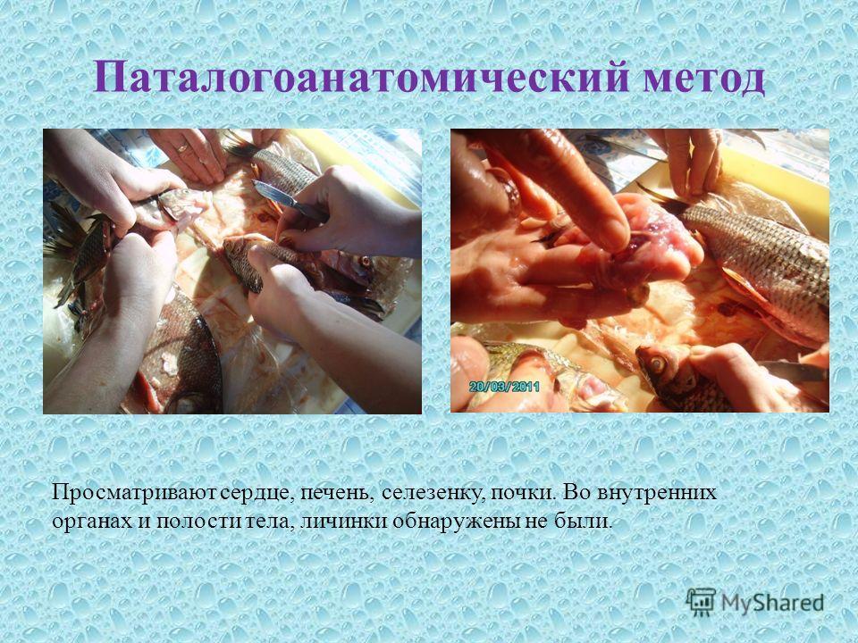 Паталогоанатомический метод Просматривают сердце, печень, селезенку, почки. Во внутренних органах и полости тела, личинки обнаружены не были.