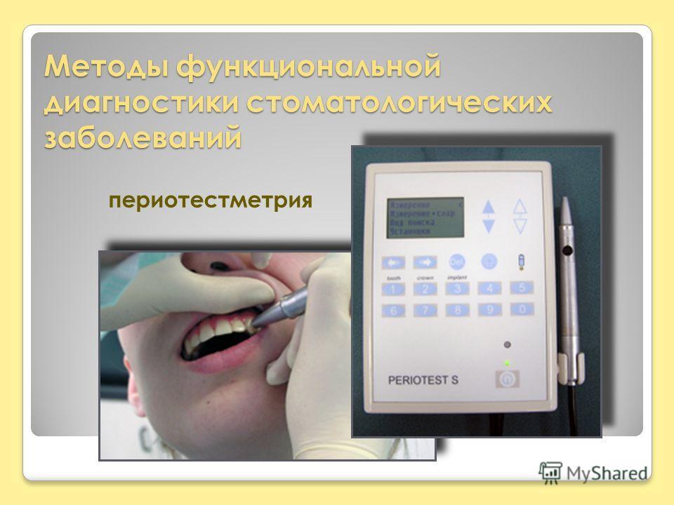 Методы функциональной диагностики стоматологических заболеваний периотестметрия